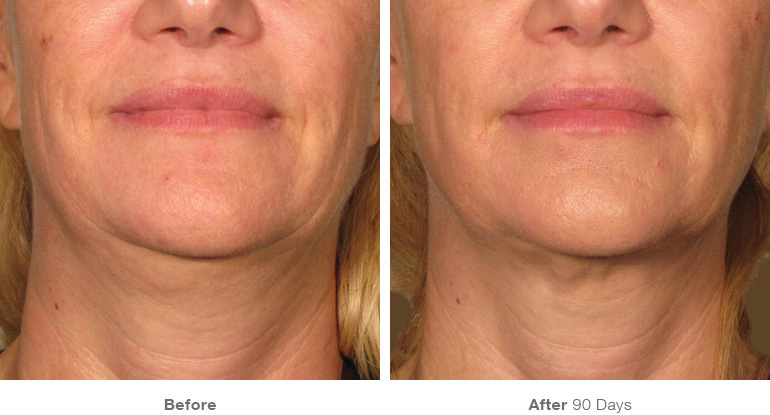 ULTHERAPY by Merz Aesthetics